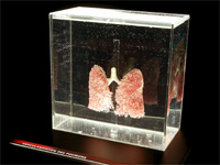 A pair of lungs(Photo: Organisers)