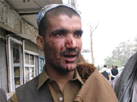 A wounded man at the Kandahar attack(Photo: Reuters)